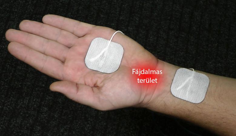 térdízületi kezelés diprospannal