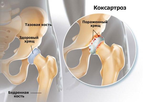a vállízület deformáló artrózisa 2 fokos kezelés anya csontjai és ízületei fájnak