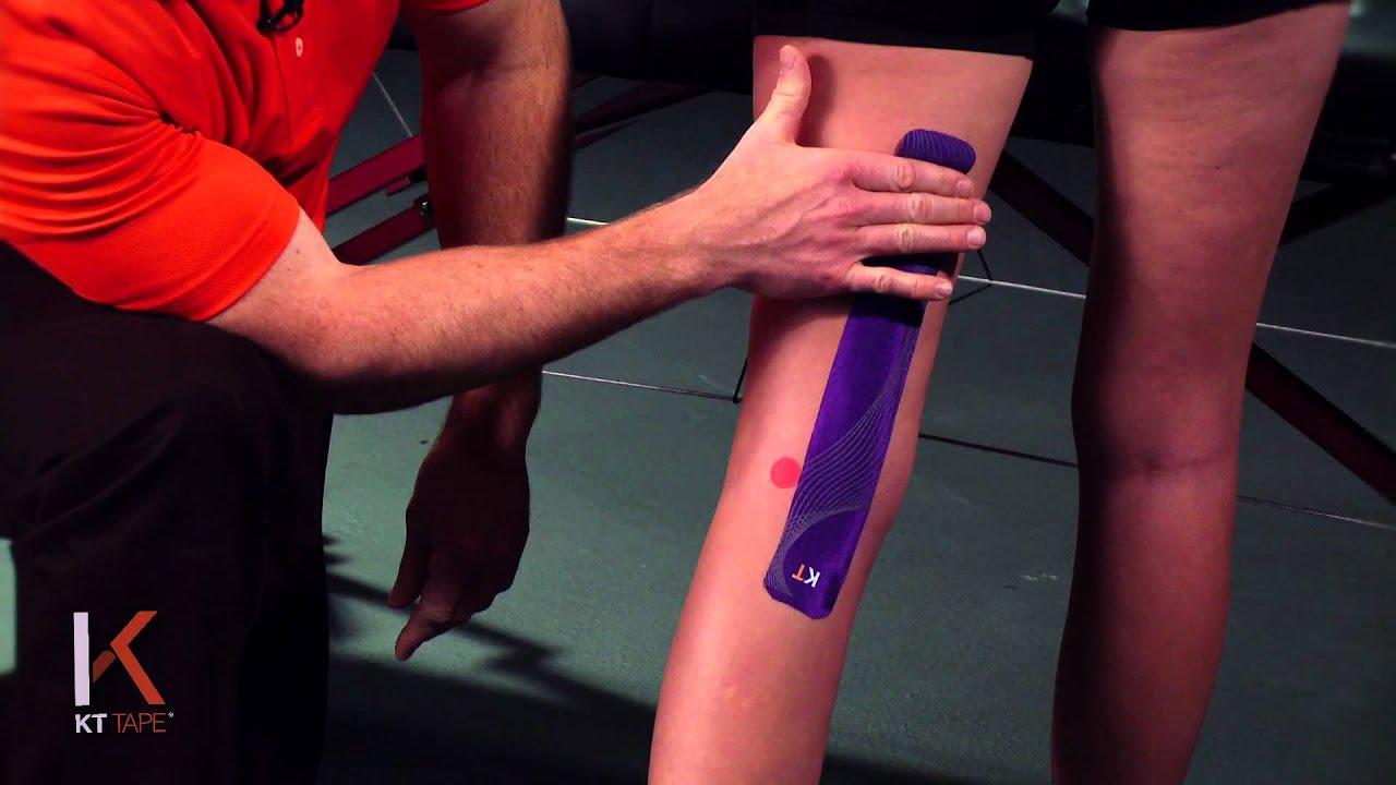 ortofen kenőcs az oszteokondrozis értékeléséhez