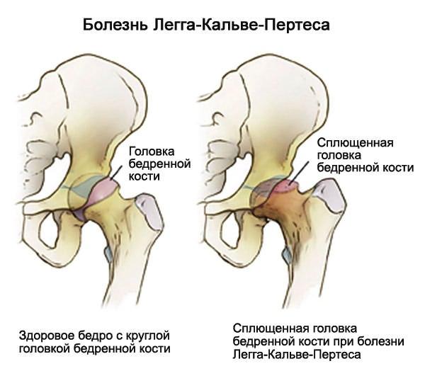 a vállízület deformáló artrózisa 2 fokos kezelés artrózis-injekciók kezelésére