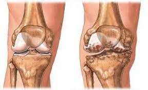 artrózis és coxarthrosis kezelése posztraumás artrózis hogyan kell kezelni