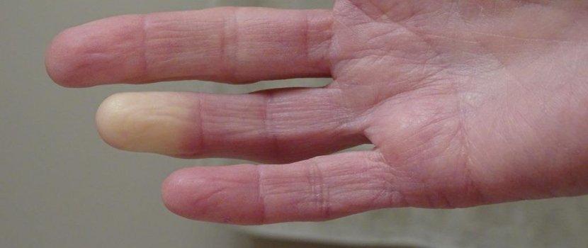 keresztzsinór fájó ízület artrózis lézerkezelés ár