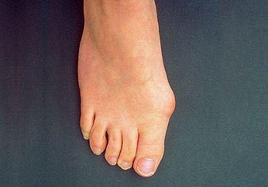 fáj a kis lábujj ízülete hogyan kezeljük a bikát ízületeknél
