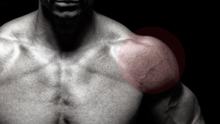 a térd tibialis artrózisa fájó ropogó térdízületeket