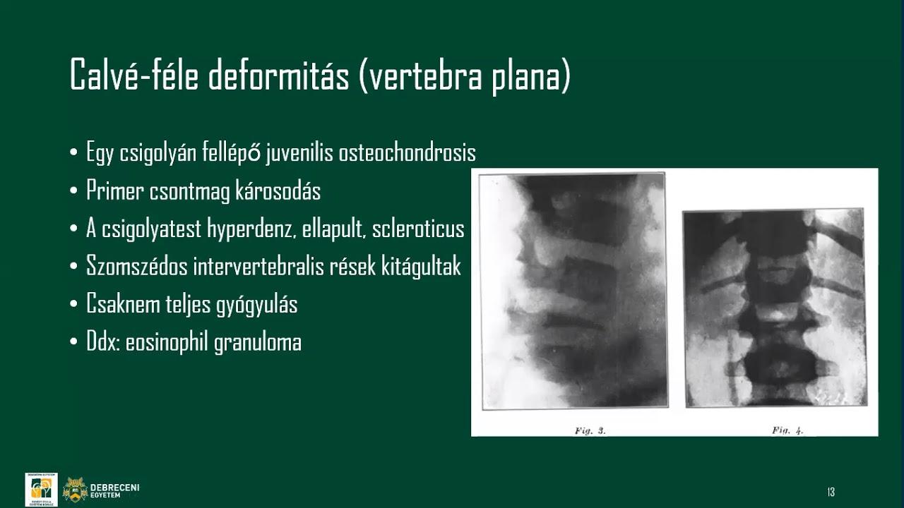 hőbalzsam ízületekre és gerincre étrend-kiegészítők artrózis kezelésében