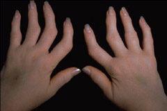 ami nem lehetséges a csípőízület artritiszével ízületi fájdalmak a gyógyászatban
