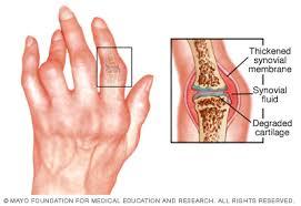 hogyan lehet enyhíteni az ízületi gyulladást az artritiszben hátfájásra kenőcs