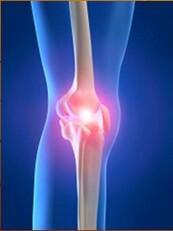 hogyan lehet kezelni a térd osteoarthrosisát