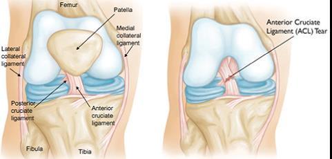 milyen gyógyszereket használnak az artrózis kezelésére mutatják az együttes kezelést