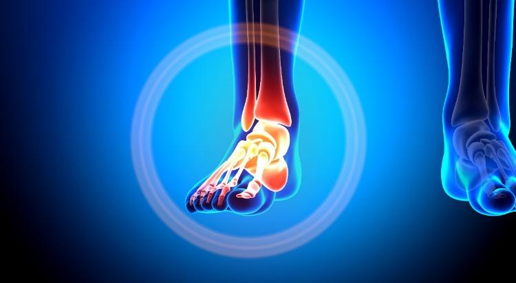 lábfájdalom bokaízület