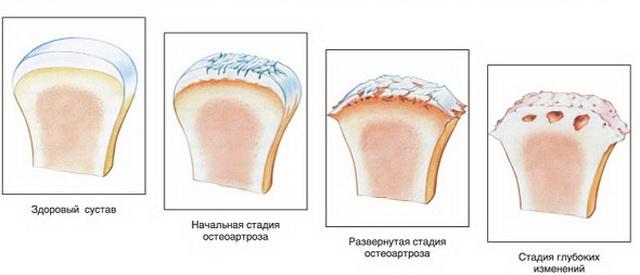 lábujjak közötti kipállás midokalis az ízületek gyulladása esetén