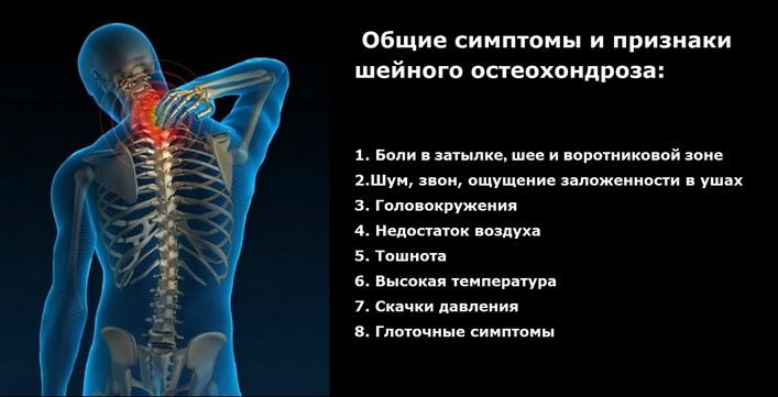 méhnyakcsonti osteochondrosis, mint a kenőcsök