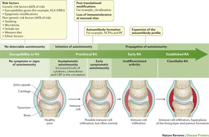 rheumatoid arthritis pathogenesis pubmed a lányom fáj az ízületekről