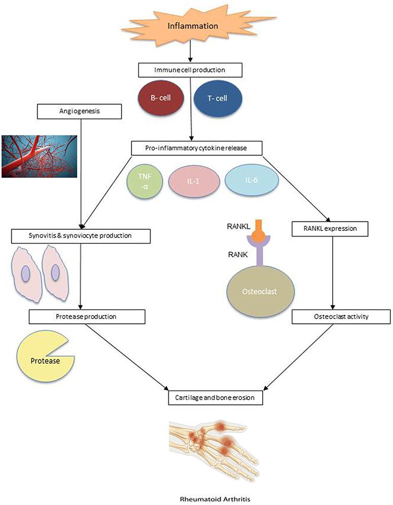 rheumatoid arthritis pathogenesis pubmed háború olaj ízületi fájdalmak kezelésére