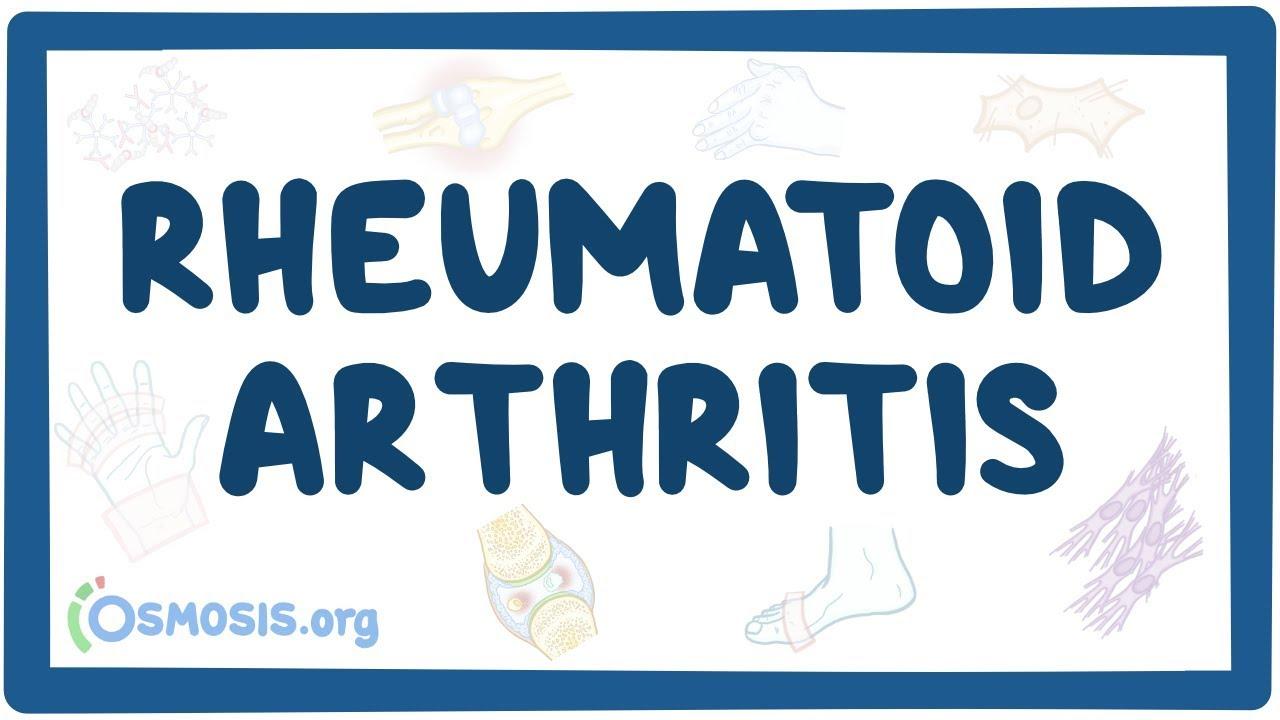 rheumatoid arthritis ppt zabolotsky ízületi kezelés