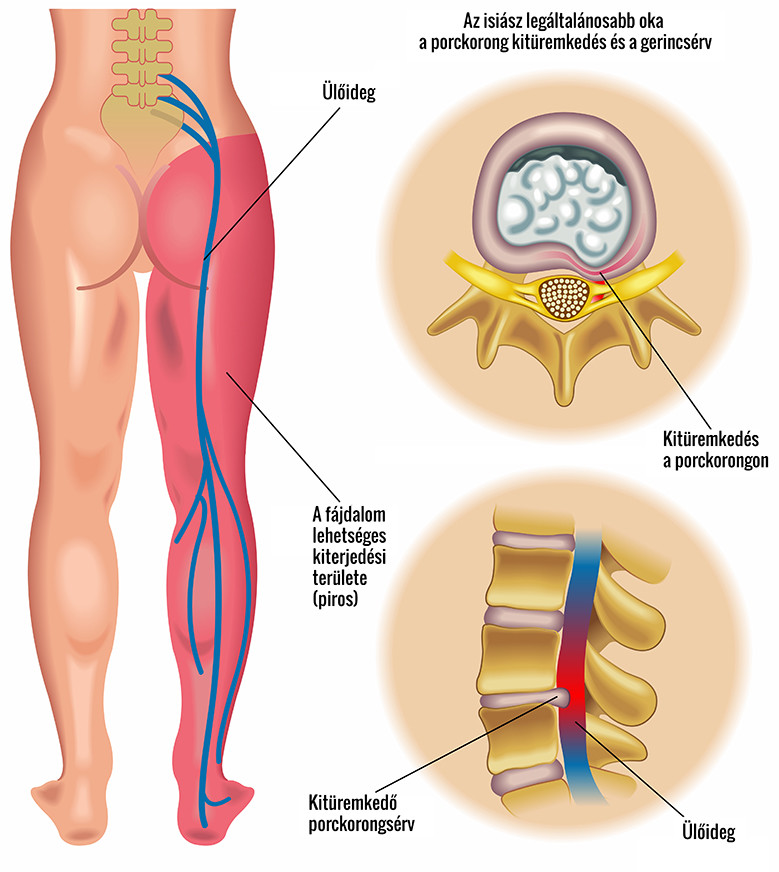 az ujjak ízületeinek deformációjának kezelése