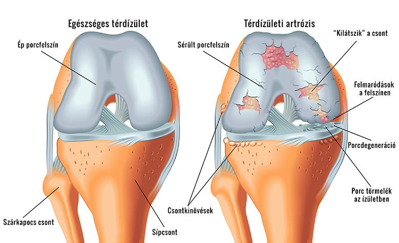 nyaki osteochondrozis diuretikumok akut fájdalom a bal térdben
