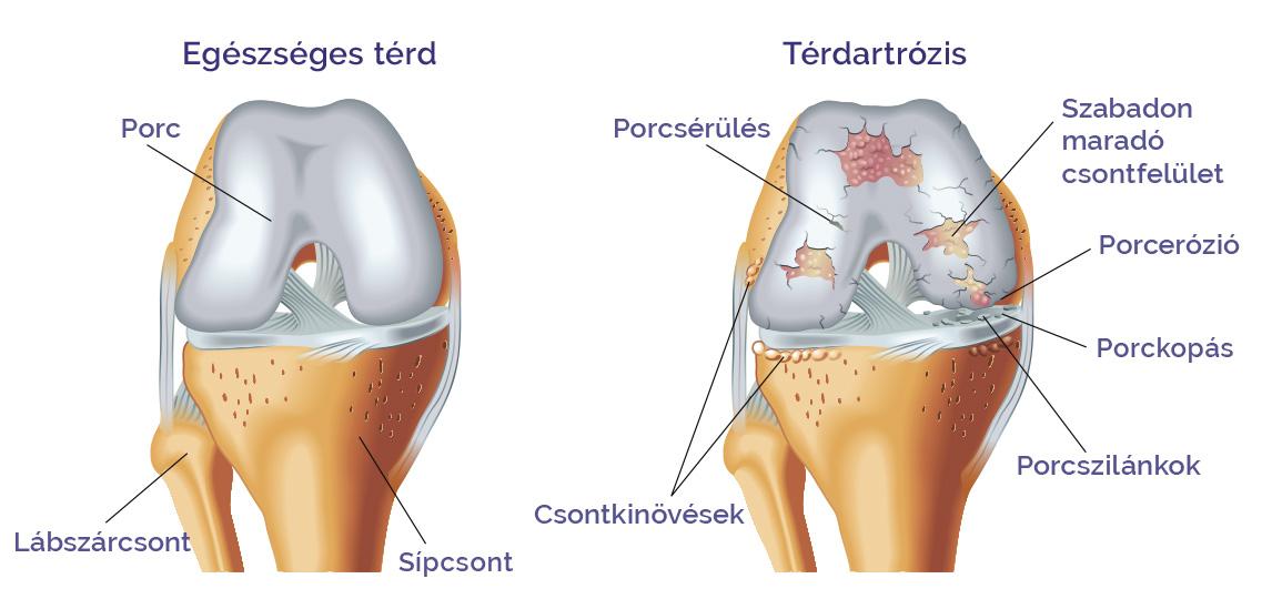 térdízület injekciós kezelés artrózisa d tabletták ízületi fájdalmak esetén