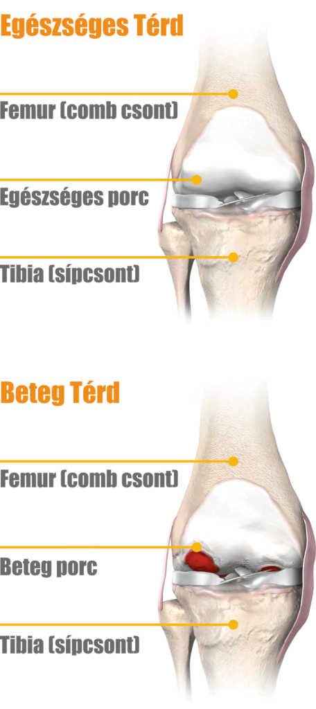 térdízület injekciós kezelés artrózisa a krém a nyaki osteochondrozistól szenved