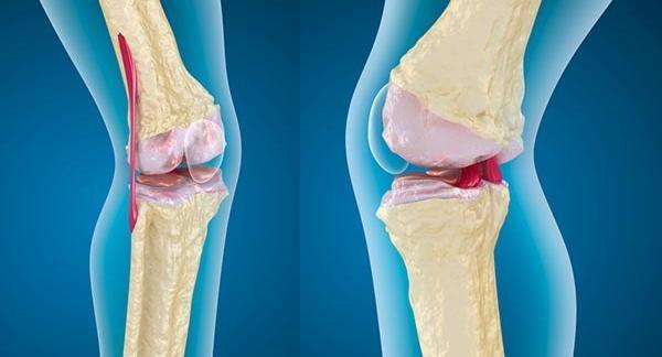 merevség reggel ízületi fájdalom coxarthrosis arthrosis kezelés