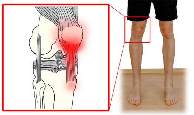 térdízületi fájdalom emeléskor