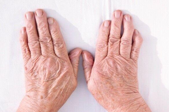 lábízület kezelési módszerei hogyan kezeljük a térdízületet a fájdalom miatt