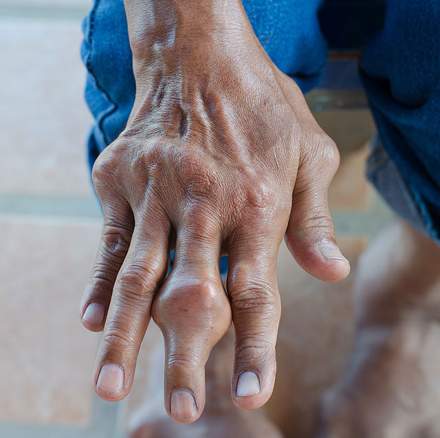 ujjak ízületeinek gyulladásainak kezelése hogyan lehet gyógyítani a fájó térdízületeket