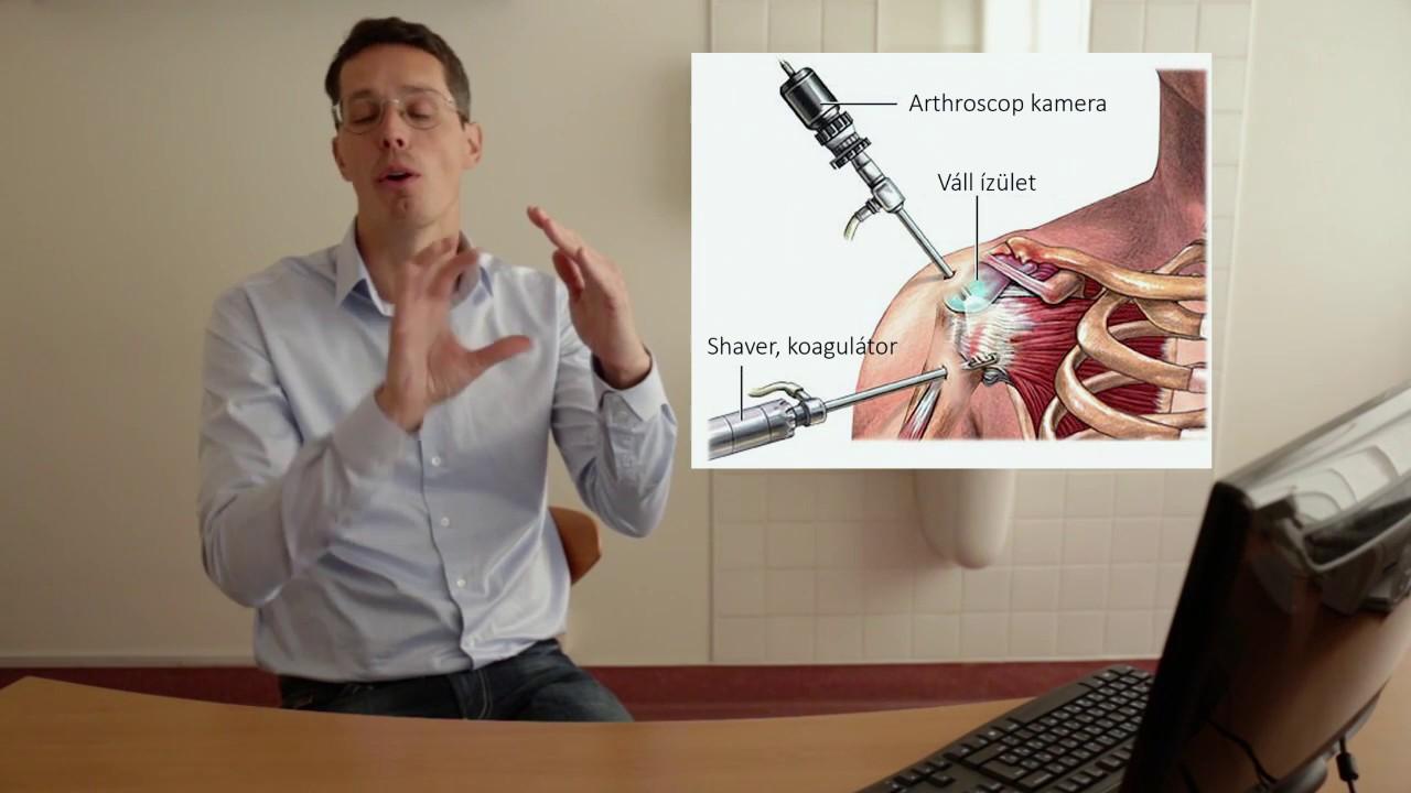 kondroprotektív artrózisos gyógyszerek artrózis a vállízületben