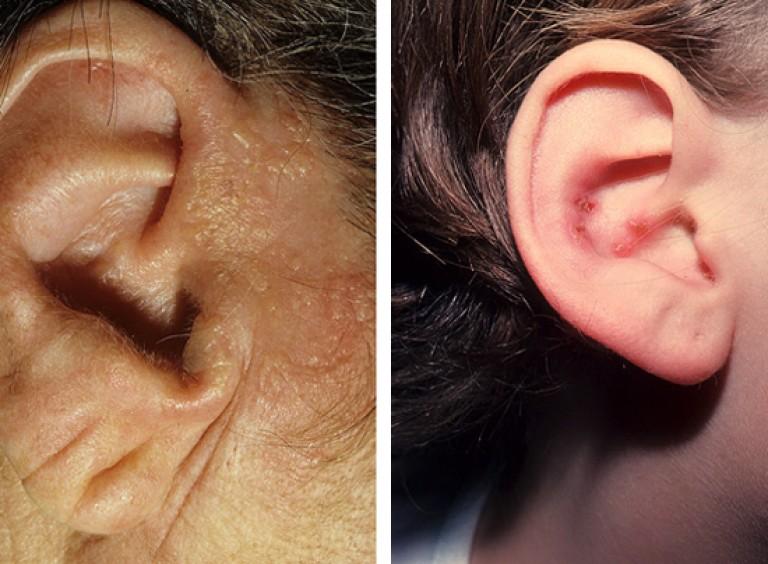 a térdízületek fájdalmainak oka és kezelése kenőcsök a könyökízület artrózisához