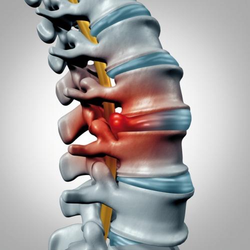 ízületek blokádja csontritkulásban vándorló fájdalom a vállízületekben