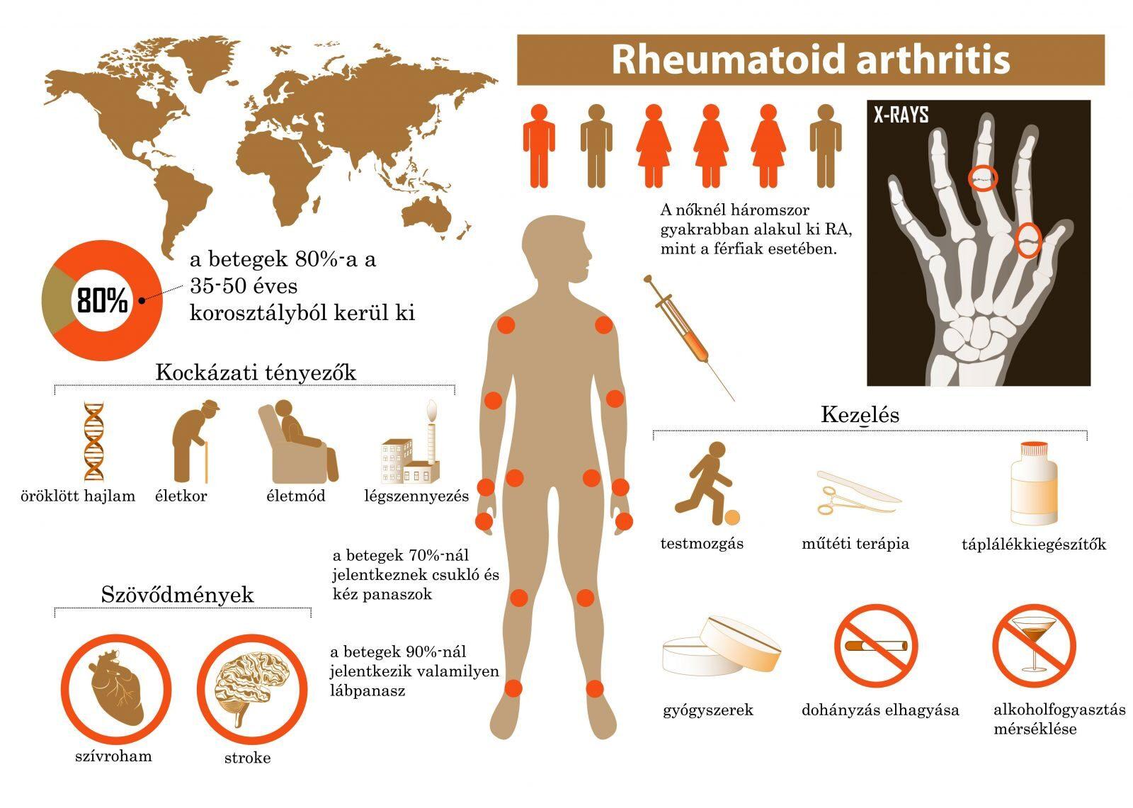 ízületi betegségek reumatológiája