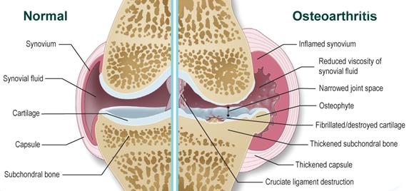 ízületi fájdalom időskori kezelés során étel és ízületi betegségek