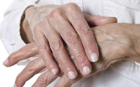 ízületi gyulladások kefével történő kezelése a térd osteoarthritis 3