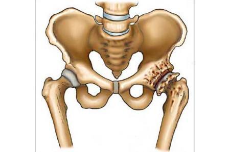 A csípőízületre kattintás fájdalom nélkül