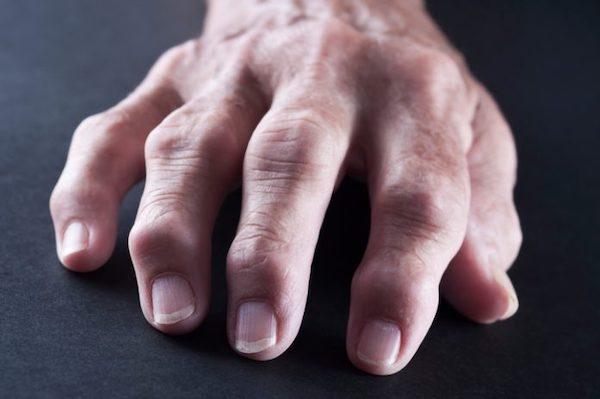 térdízületi betegség 3 fok csípőízületi szinovitisz gyógyszeres kezelés